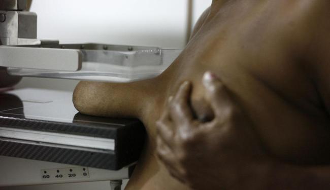 Estudos afirmam que mulheres de 50 a 69 anos são as que mais se beneficiam da mamografia - Foto: Raul Spinassé | Ag. A TARDE