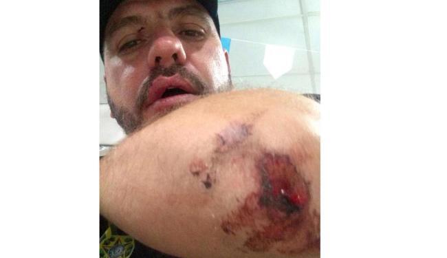Empresário diz que está muito machucado e vai tomar providências - Foto: Reprodução | Facebook | Carla Zambelli