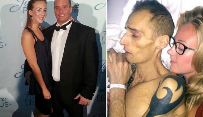 Imagens publicadas nas redes sociais mostram Deam antes e depois da doença - Foto: Reprodução | Facebook