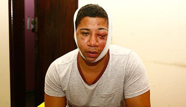 Francisco levou tiro de raspão na cabeça e um soco que fraturou osso da face - Foto: Edilson Lima   Ag. A TARDE