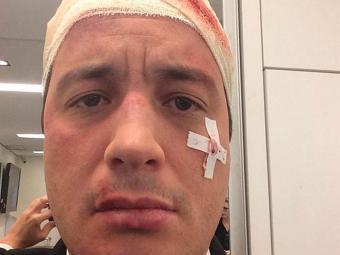 Rafael Cortez teve ferimentos levez e passa bem - Foto: Reprodução   Instagram
