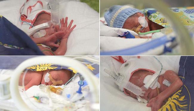 Atualmente os bebês pesam 2,5kg cada - Foto: Reprodução | Frauen Zimmer