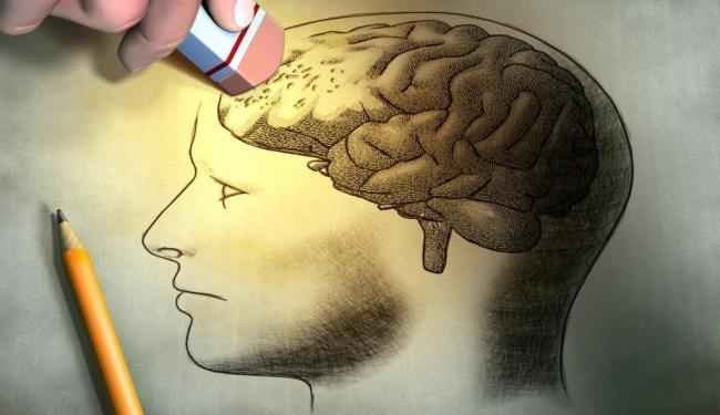 Doença se caracteriza pela perda de memória - Foto: Divulgação