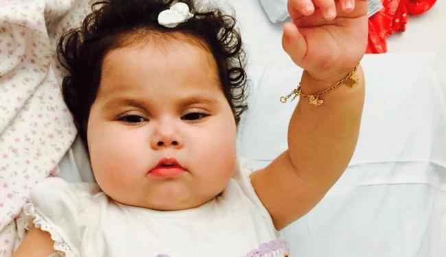 Menina nasceu com doença rara e passou por cirurgia - Foto: Reprodução   Facebook