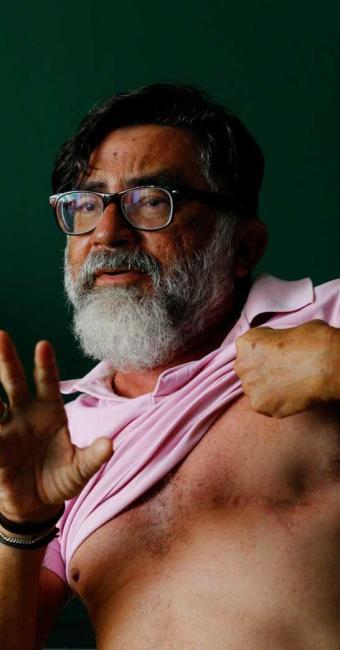 Um ano após retirar tumor, professor Maurício Tavares exibe cicatriz da cirurgia - Foto: Luciano da Matta | Ag. A TARDE