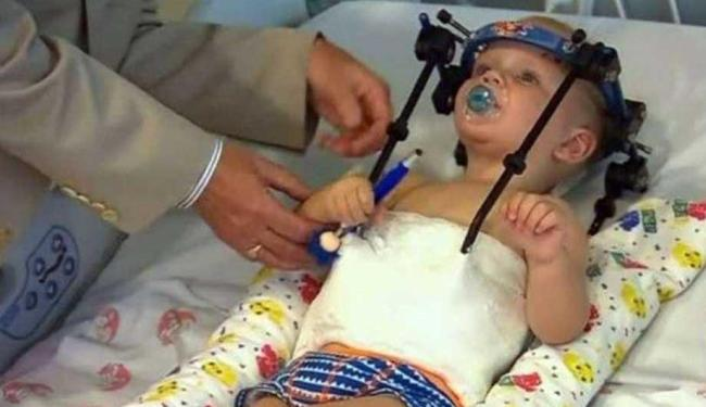 Jackson terá que usar órtese até sua recuperação completa - Foto: Divulgação | BBC