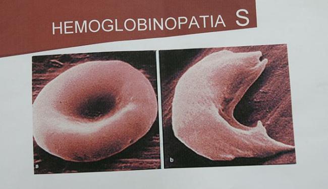 Com a doença, as hemácias adquirem formato de foice, ficam rígidas e obtruem os vasos - Foto: Haroldo Abrantes | Ag. A TARDE