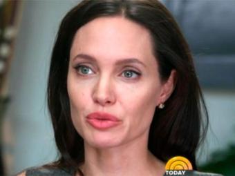 Angelina contou que sua mãe pediu a médica para retirar o ovário dela - Foto: Reprodução | Today | NBC