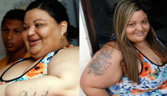 Veja o antes e o depois de Adizaite que já perdeu 26 quilos dos 35 que precisa para fazer a cirurgia - Foto: Fotos: Luiz Tito | Ag. A TARDE