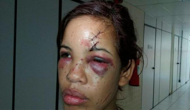 Durante depoimento, Karoline apresentava cortes no rosto e inchaço nos olhos - Foto: Aldo Matos | Acorda Cidade