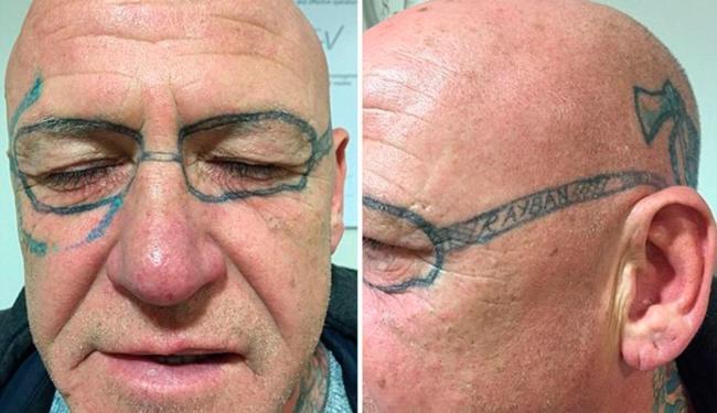 Após dois anos com a tatuagem no rosto, o homem decidiu retirar a