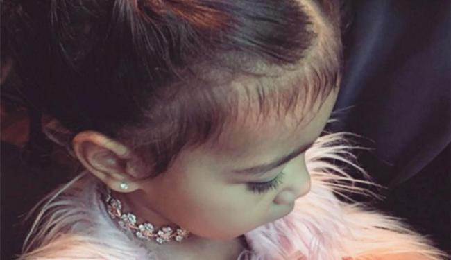 Segundo fontes, Kim teria esperado North completar dois anos para iniciar o tratamento - Foto: Reprodução   Instagram
