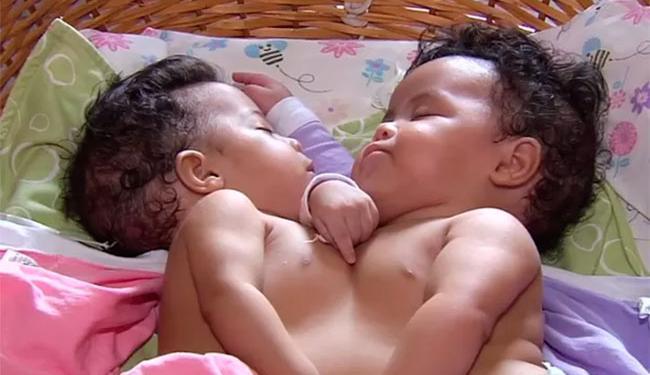Júlia e Fernanda, de 5 meses, nasceram em Itamaraju, no interior da Bahia - Foto: Reprodução | TV Anhanguera