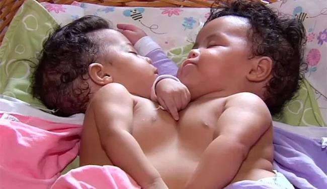 Júlia e Fernanda, de 5 meses, passaram por cirurgia de separação na quarta, 13, em Goiás - Foto: Reprodução | TV Anhanguera