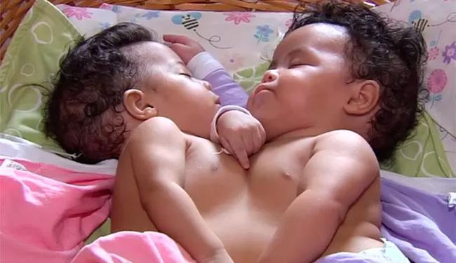 Júlia e Fernanda, de 5 meses, nasceram em Itamaraju - Foto: Reprodução   TV Anhanguera