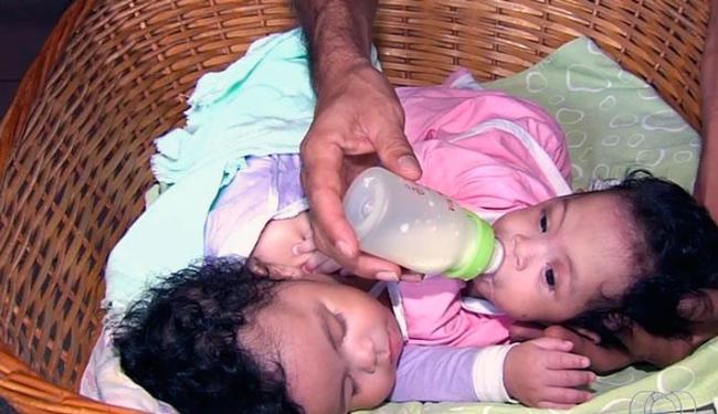 Elas foram separadas em c irurgia realizada no Hospital Materno Infantil (HMI), em Goiás - Foto: Reprodução | TV Anhangueragême