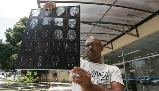 Após 4 remarcações, João teve a notícia de que não teria o benefício renovado - Foto: Raul Spinassé l Ag. A TARDE