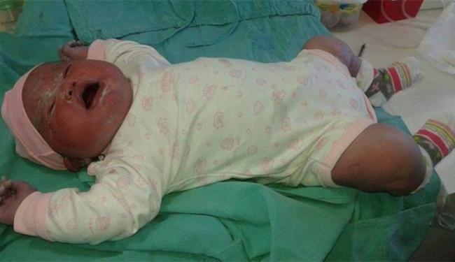 Olívia nasceu nesta segunda-feira, 15, de cesariana e passa bem - Foto: Reprodução Facebook l Miguel Angel Parra