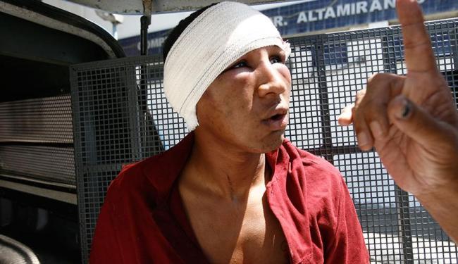 Murilo dos Santos Marques, 21 anos, foi preso após tentativa de assalto na Paralela - Foto: Edilson Lima | Ag. A TARDE