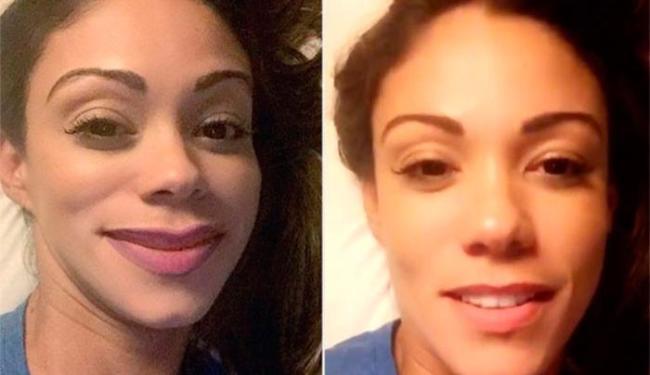 Kamilla publicou uma foto com os lábios inchados, como se provocasse Anitta - Foto: Reproduão
