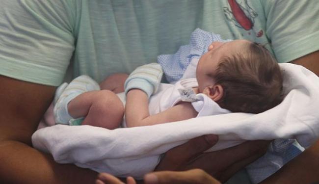 A criança pode vir com um cérebro menor, mas a cabeça do tamanho normal com líquido amniótico - Foto: Xando Pereira | Ag. A TARDE