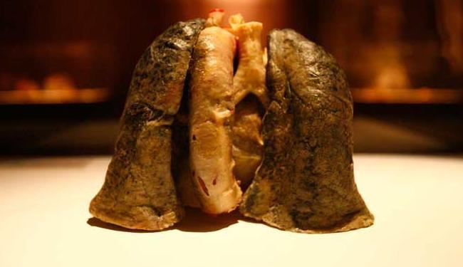 O câncer de pulmão é o que mais mata no mundo (na foto, pulmão de um fumante) - Foto: Mila Cordeiro | Ag. A TARDE
