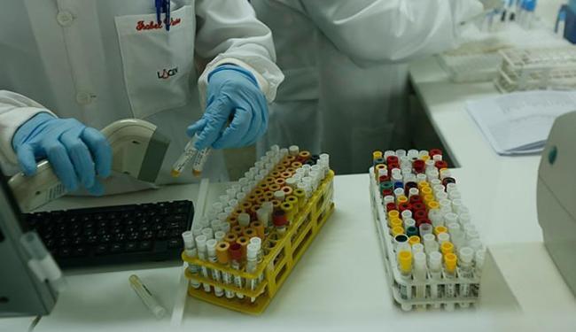 Dispositivo é composto por dois cassetes portáteis, que utilizam uma pequena amostra de soro do paci - Foto: Lucas Melo l Ag. A TARDE