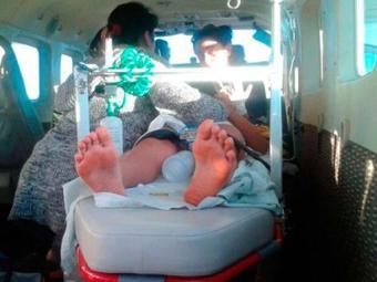 menino picado por cobra - Foto: Foto: Divulgação/ Graer