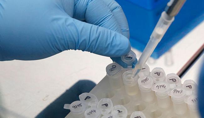 Pesquisadores não acharam a presença do vírus da Zika em material vaginal da mulher - Foto: Carlos Jasso | REUTERS