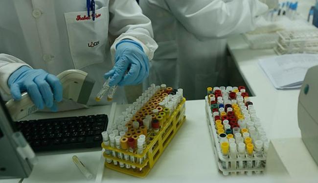 As doses serão testadas em cerca de 40 pessoas - Foto: Lucas Melo l Ag. A TARDE