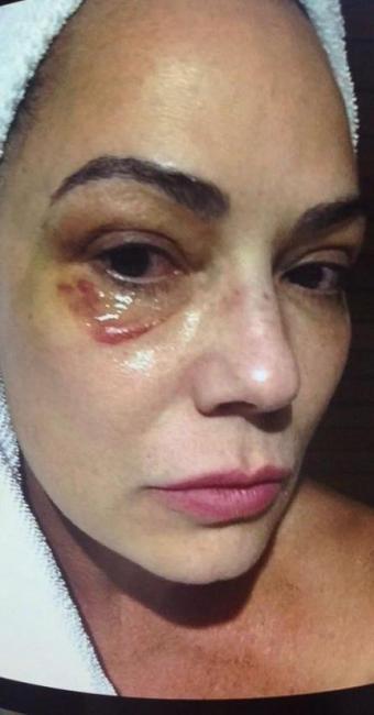 Luiza Brunet em foto feita após agressão que ela afirma ter sofrido do ex-namorado - Foto: Reprodução | TV Globo
