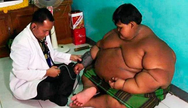 Arya Permana é considerado obeso mórbido - Foto: Reprodução | BBC