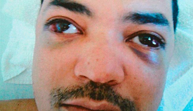 Advogado sugere que ferimentos nos olhos indicam que Leonardo foi espancado - Foto: Divulgação