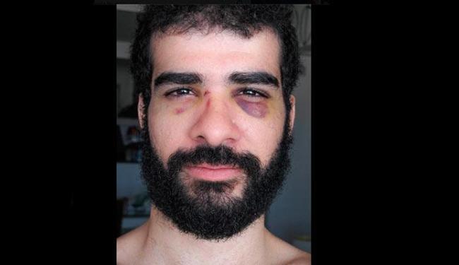 Marte Ventura postou imagem com os olhos inchados pelas agressões - Foto: Reprodução