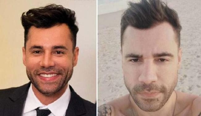Rodrigo Sant'Anna antes e depois da cirurgia para redução das bochechas - Foto: Reprodução | Instagram