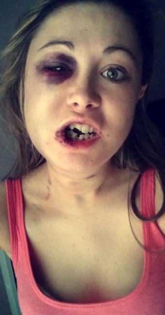 Stephanie Littlewood perdeu alguns dentes e ficou com hematomas no rosto - Foto: Reprodução   Facebook