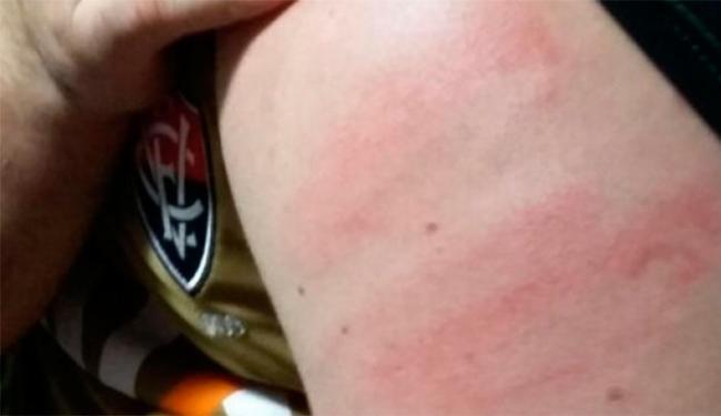 Torcedor disse que foi agredido nos braços e nas costas - Foto: Reprodução