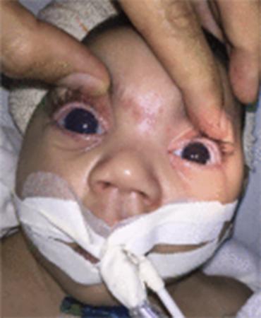 O trabalho foi publicado, na terça-feira, 29, na revista Ophthalmology - Foto: Reprodução