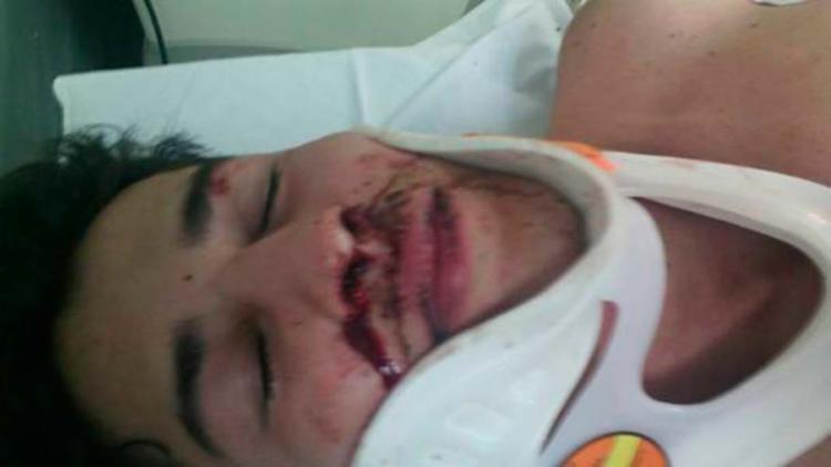 Desacordado, Ambrogi foi socorrido por um segurança da boate - Foto: Reprodução | Facebook