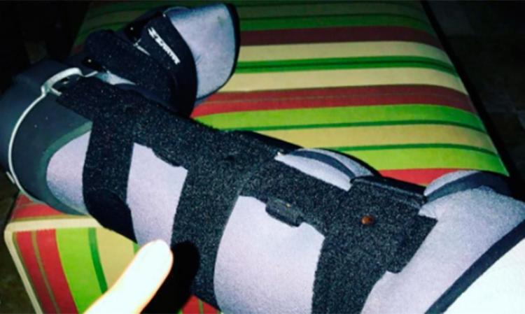 Cantora teve o pé imobilizado - Foto: Reprodução | Instagram