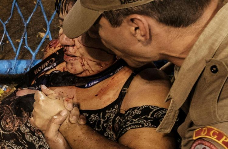 Entre os feridos estava uma senhora - Foto: Vanderlei Almeida   AFP