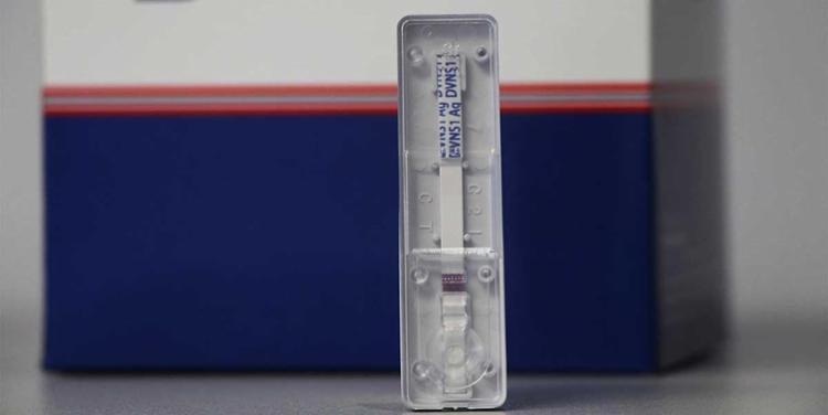 Um dos testes consegue realizar o diagnóstico a partir do quinto dia de infecção - Foto: Bahiafarma | Divulgação