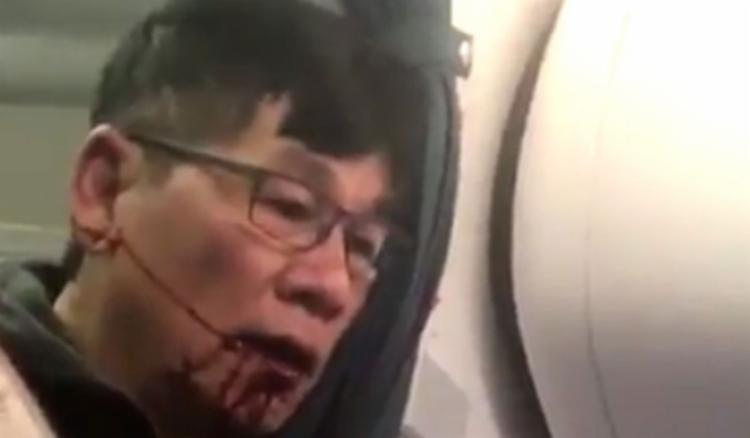 Passageiro ficou ferido ao ser arrastado - Foto: Reprodução