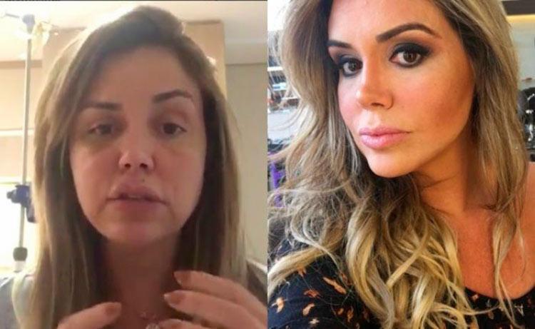 Foto exibe a modelo com o rosto inchado por conta da inflamação - Foto: Reprodução | Instagram