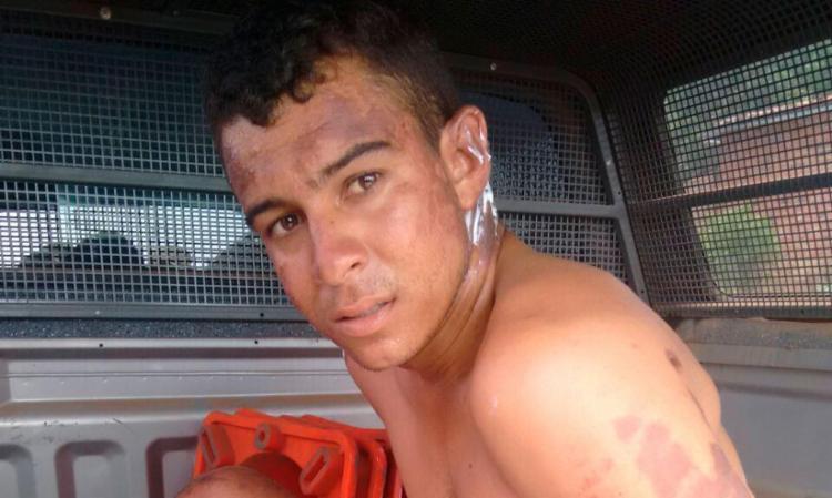 Raul teve queimaduras em várias partes - Foto: Divulgação | PM