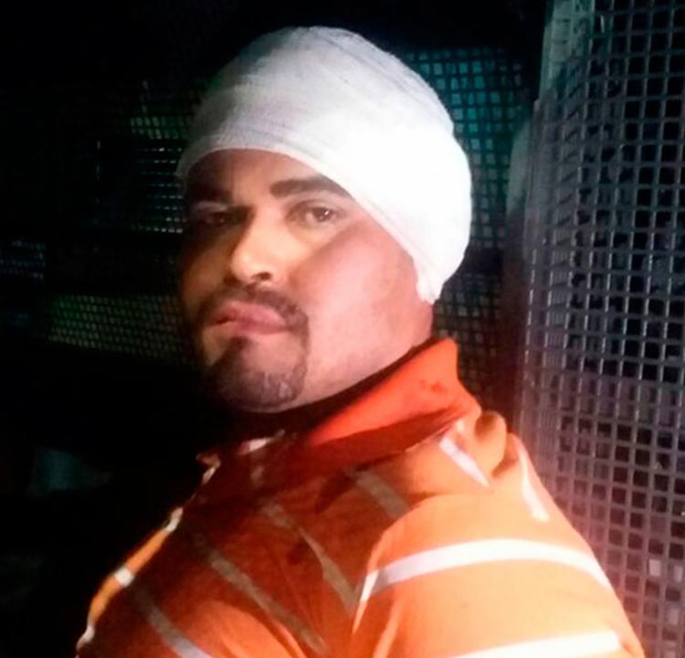 Um dos suspeitos estava com um corte na orelha e na mão - Foto: Reprodução   Blog do Sigi Vilares