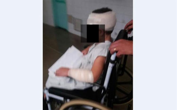 Menino foi atacado no braço, na perna e na cabeça - Foto: Reprodução   Blog Rodrigo Ferraz