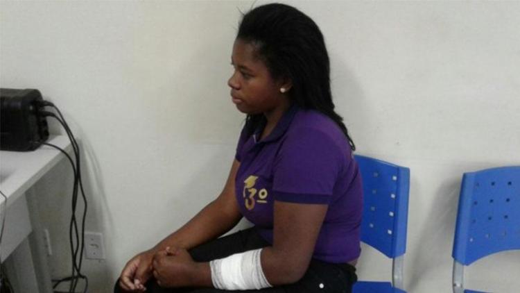 Marlucy foi atingida no braço após tentar se defender - Foto: Aldo Matos | Reprodução | Acorda Cidade