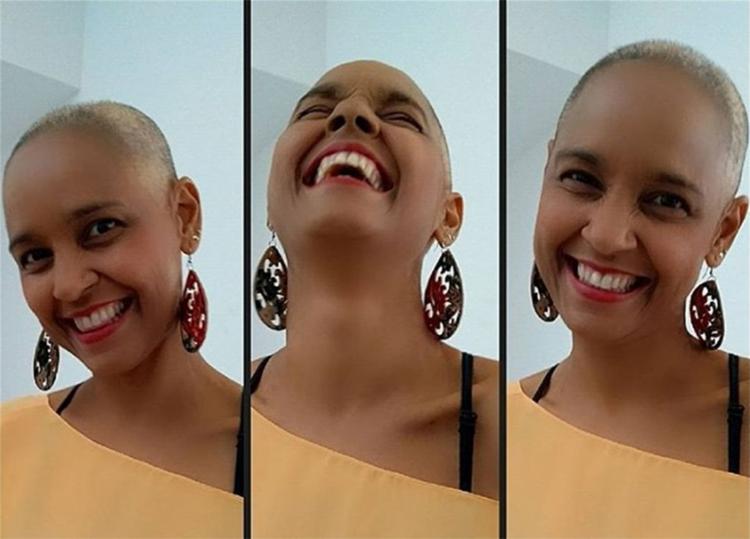 Carla Visi publica foto após tratamento contra câncer