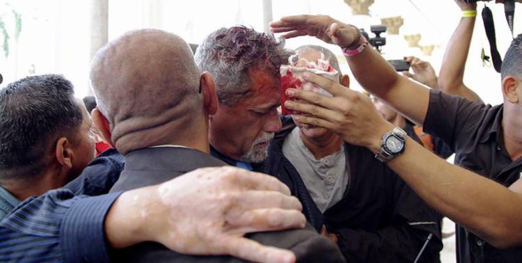 O deputado da oposição Americo De Grazia foi atingido na cabeça - Foto: Francisco Bruzco | AFP